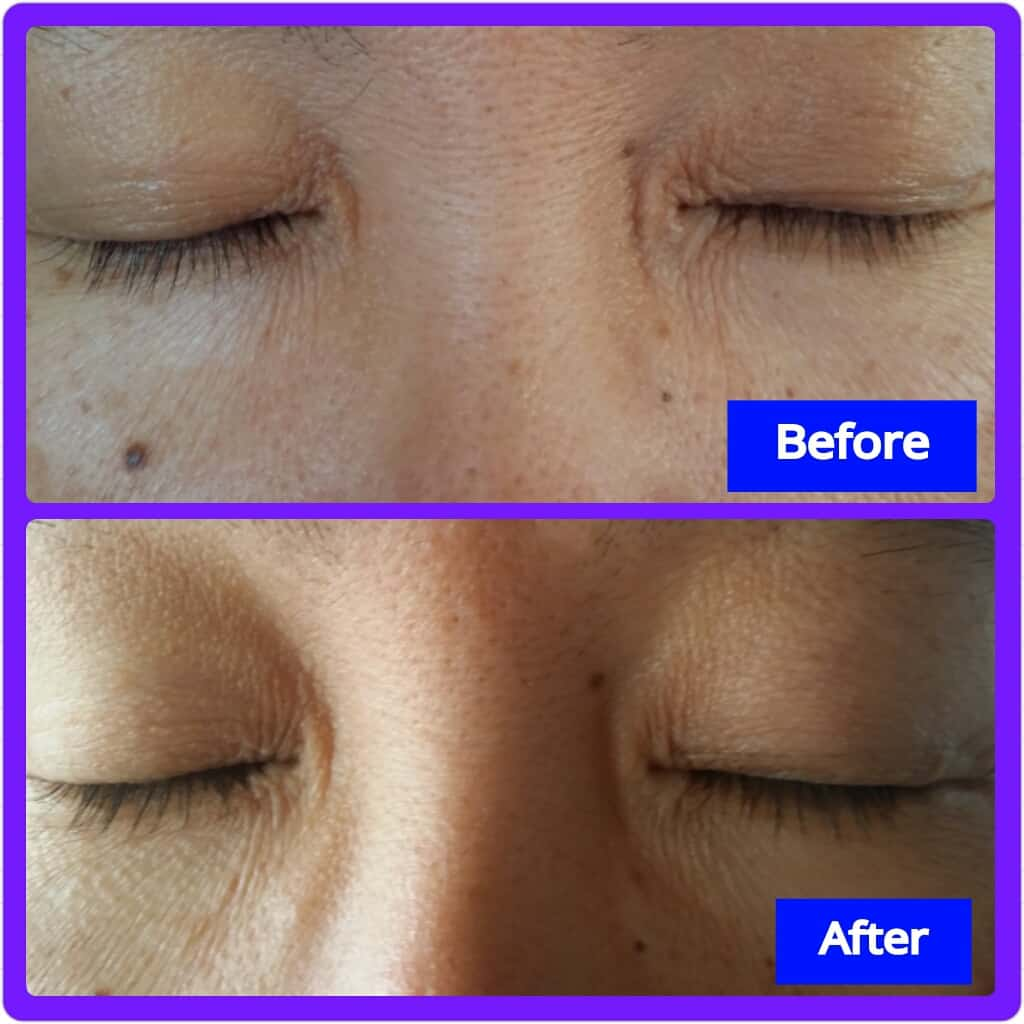 Rapidlash Before and After