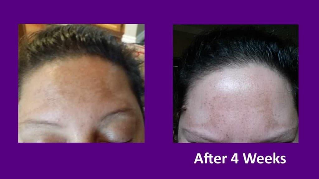 Sun damage forehead