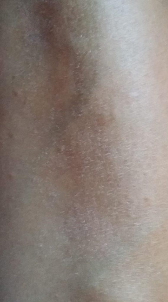 Right Leg Before