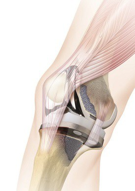 5 Things You Should Know About Getting a Knee Replacement