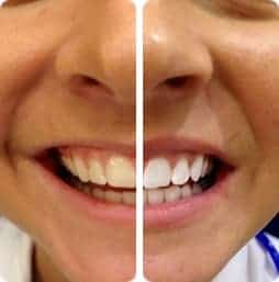 4 Teeth Whitening Tips that will brighten your smile