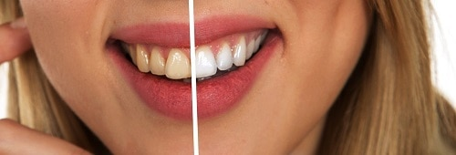 Why Cosmetic Dental Surgery Might Be A Good Option